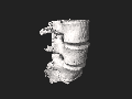 Lumbar Vertebrae L3-L5 3D SR Nevit Dilmen.stl