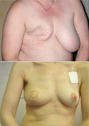 Breast - Conventional mastectomy (top); skin sparing mastectomy and latissimus dorsi myocutaneous flap reconstruction, prior to nipple reconstruction and tattooing (bottom).