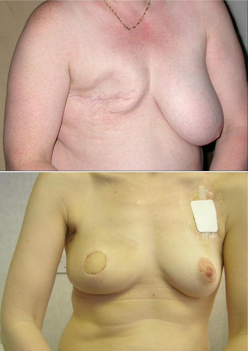 Mastectomy sex, zarin nude fake