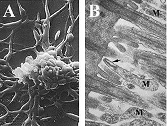 Mycoplasma pneumoniae -  A) Filamentous Mycoplasma pneumoniae cells B) M. pneumoniae cells (M) attached to ciliated mucosal cells by the attachment organelle (indicated by arrow)