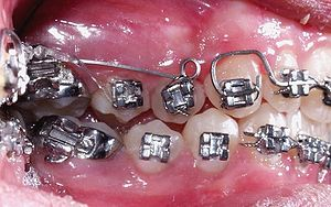 Cantilever mechanics (orthodontics) - A cantilever is used to obtain the buccal displacement of tooth 1.4 which is in cross bite.