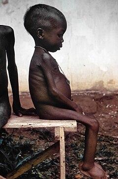 http://commons.wikimedia.org/wiki/File:Starved_girl.jpg