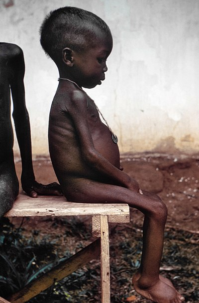 A child suffering the effects of severe hunger and malnutrition as a result of the blockade. Pictures of the famine caused by Nigerian blockade garnered sympathy for the Biafrans worldwide. It was regarded in the Western press as the genocide of 2 million people, half of them children and fund raising for relief was carried out at the time, with the help of Senator Ted Kennedy. Starved girl.jpg