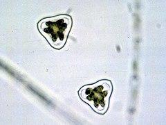 Staurastrum EPA.jpg