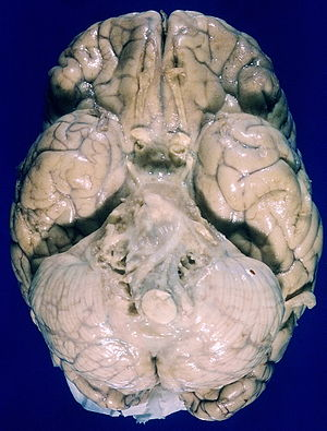 Orbital gyri - Image: Tuberculous leptomeningitis