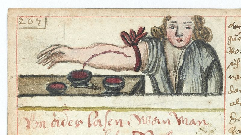 File:WMS 990 Bloodletting Wellcome L0041074.jpg