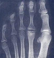 X-ray of hammer toe - radlines.org