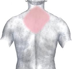 Вид на спину с общими зонами MI в цвете