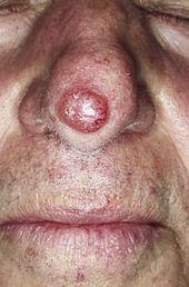 Symptome eines gebrochenen Penis