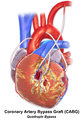 Blausen 0154 CABG Quadruple.png