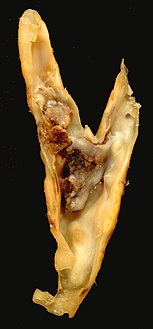 Atherosclerotic plaque from a carotid endarterectomy specimen. This shows the bifurcation of the شريان سباتي أصلي into the شريان سباتي باطن and شريان سباتي ظاهر.