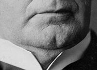 Cleft-Chin.jpg