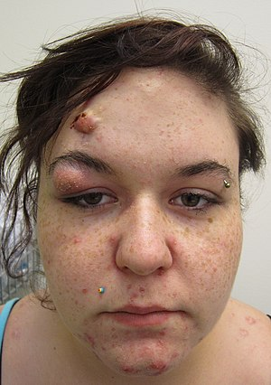 A severe case of cystic acne.