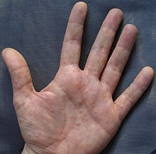 Dyshidrosis wikipedia for Dermatitis atopica piscina cloro