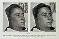 Female with smallpox on face Wellcome L0032967.jpg