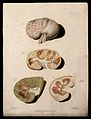 Four sections of diseased kidney. Colour mezzotint by W. Say Wellcome V0009746EL.jpg