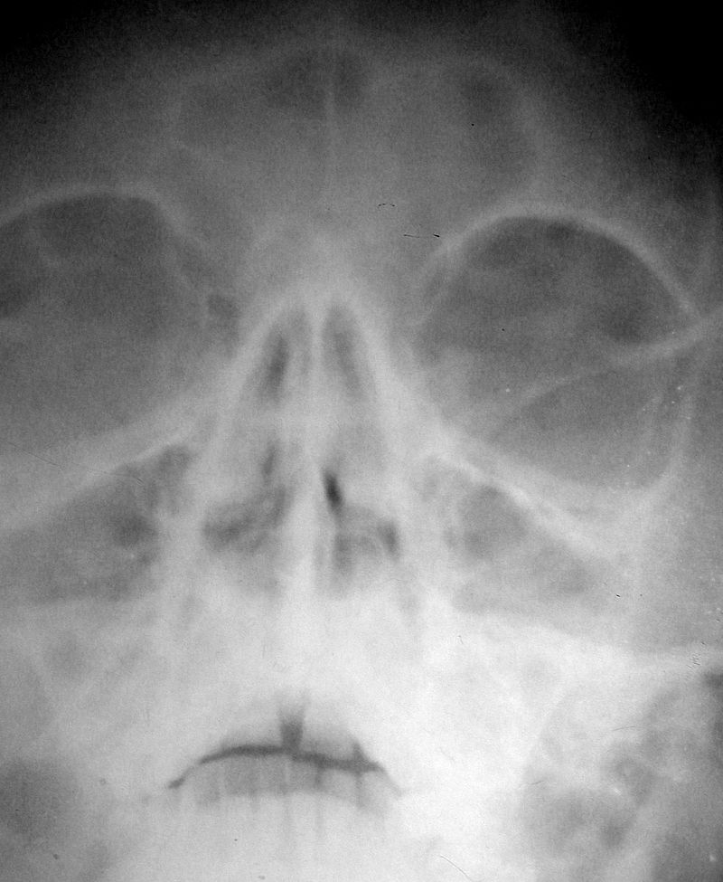Frontal sinus inflamation.jpg
