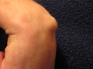 Ganglion Cyst located on right wrist