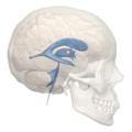 Interthalamic adhesion - 3rd ventricle - 02.png
