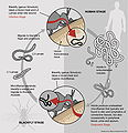 Life Cycle of Onchocerca volvulus PLoS Medicine.jpg