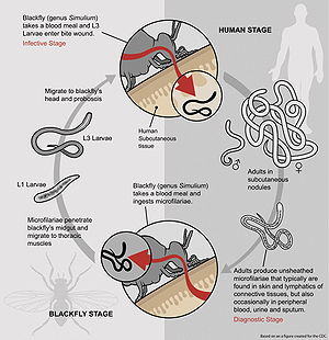 Onchocerca volvulus - The life cycle of Onchocerca volvulus.