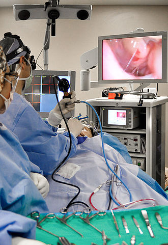 Otorhinolaryngology - Otolaryngologist performing an endoscopic sinus surgical procedure