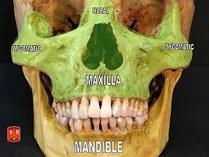 nasal bone image maxilla