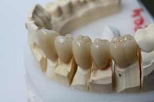 Yttria-stabilized zirconia - Multiple metal-free dental crowns