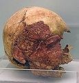 Nigde museum Kosk Hoyuk skull 0878.jpg