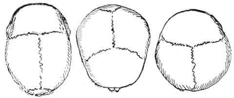 PSM V59 D402 Cranium shapes from above.png
