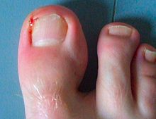 Paronychia of the big toe.