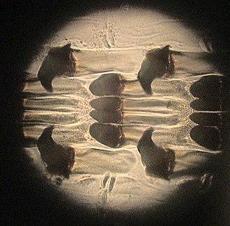 Radula - Microscopic detail of a docoglossan radula showing the denticles or teeth