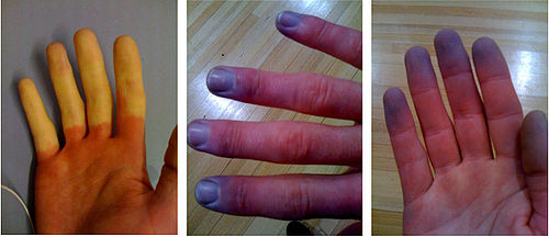Raynaud phenomenon.jpg