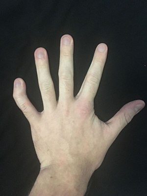 Photograph of a left hand showing severe clinodactyly on the fifth finger.