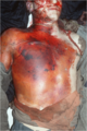 Sand military accident autopsy, Feb 1991 (one).webp
