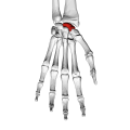 Scaphoid bone (left hand) 01 palmar view down.png