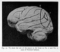 Site of lesion in various forms of aphasia. Wellcome L0023666.jpg