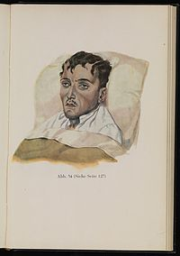 Soldier suffering from dysentery. Baumgartner, 1929 Wellcome L0074306.jpg