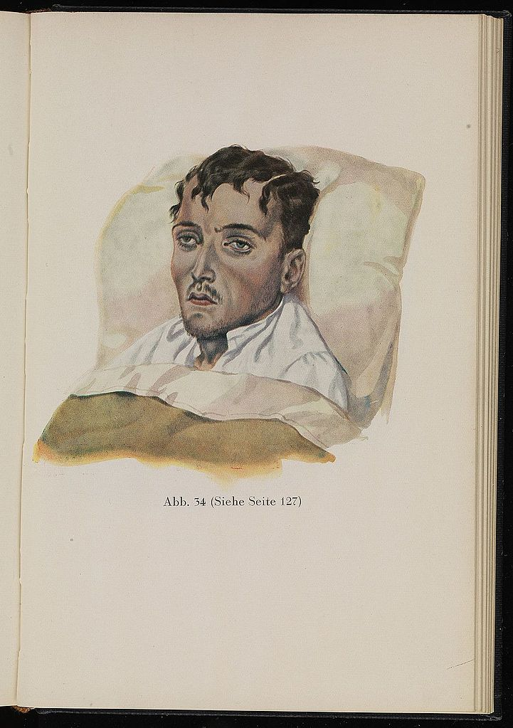 file soldier suffering from dysentery  baumgartner  1929 wellcome l0074306 jpg