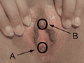 Vagina -- A vaginal opening B clitoris.png