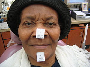 Vertical dimension of occlusion - A patient prepared for measurement of VDO. Two stickers have been affixed to her face in order to establish the distance between the dots drawn on the stickers when her mandible is in a position that matches her VDO.  Because this patient is completely edentulous (has no teeth), her VDO measurement will be subjectively based on esthetics and phonetics.