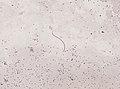Wuchereria bancrofti (YPM IZ 093350).jpeg