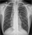Achalasie im Thorax pa 001.png