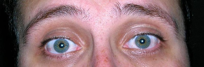 File:Blue-Green Eyes with Freckles.JPG