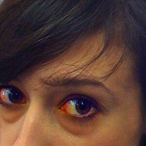 Eye Irritation Includes Mild Eye Redness Itching Or
