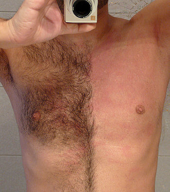 chest hair removal.