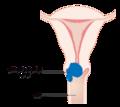 Diagram showing stage 2A cervical cancer CRUK 212-ar.png