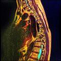 Dorsal spine MRI Scoliosis 12.jpg
