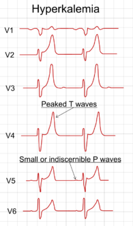 تخطيط كهربائية القلب showing precordial leads in hyperkalemia.