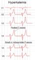 ECG in hyperkalemia.png